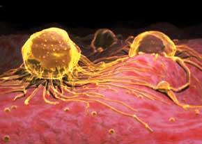 شایع ترین سرطان های مردان را بشناسید