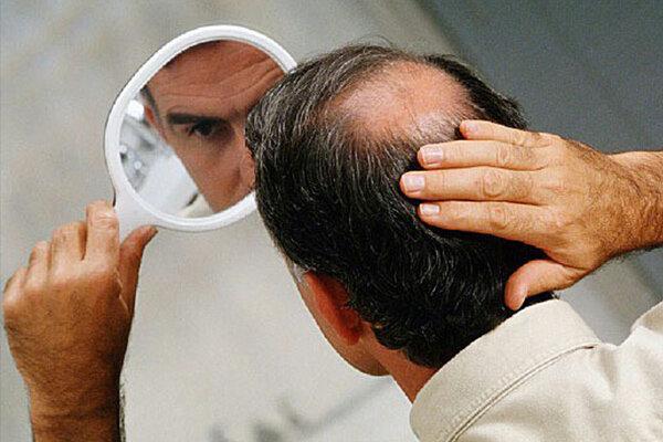 راه های درمان ریزش مو/ اهمیت مصرف ریز مغذیها