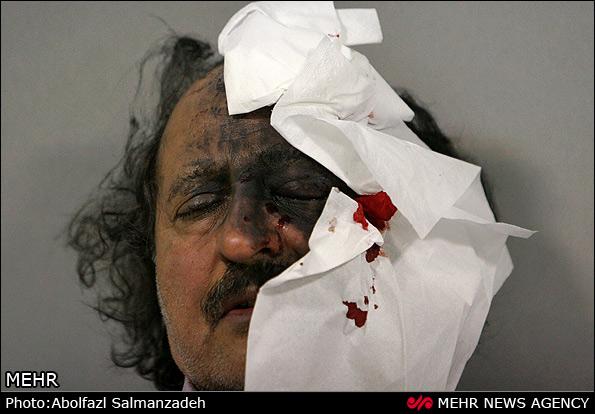 عکس/مجروحان و مصدومان چهارشنبه سوری