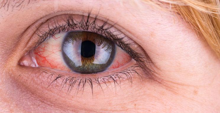 علت قرمزی چشم و راه درمان آن